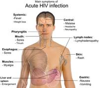 Cẩn trọng với tác dụng phụ khi điều trị phơi nhiễm HIV