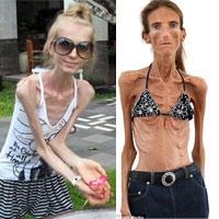 Thiếu nữ biến thành bộ xương khô vì mốt