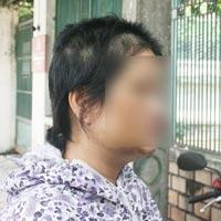 Một phụ nữ bị con tình nhân đánh bầm dập