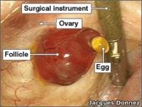10 điều nên biết về sự rụng trứng