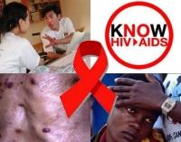 Dấu hiệu nhận biết mình bị nhiễm HIV