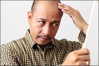"""Loại hormone được tình nghi là """"thủ phạm"""" gây nên chứng hói đầu ở con trai là gì?"""