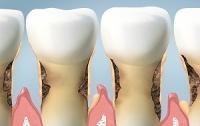 Bạn sẽ không dám lười đánh răng thêm lần nào nữa nếu biết tác hại kinh người sau