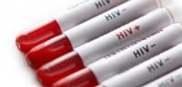 Em cần kiểm tra lại tình trạng lây nhiễm HIV
