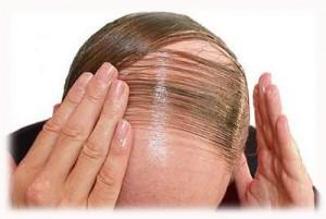 Bệnh hói đầu: Nguyên nhân và triệu chứng
