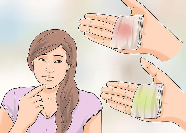 5 vấn đề sức khỏe rất dễ gặp phải ở vùng kín nhưng con gái lại ít để tâm chú ý