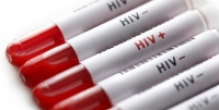Tế bào miễn dịch được cho là vô dụng thực ra là vũ khí chống lại HIV