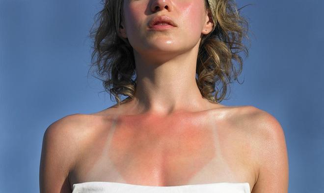 """Những cách nhanh nhất """"cứu"""" làn da cháy nắng để tránh hậu quả nghiêm trọng trong những ngày nắng kỷ lục này"""
