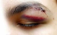 Chấn thương mắt gây nguy hiểm cho con người
