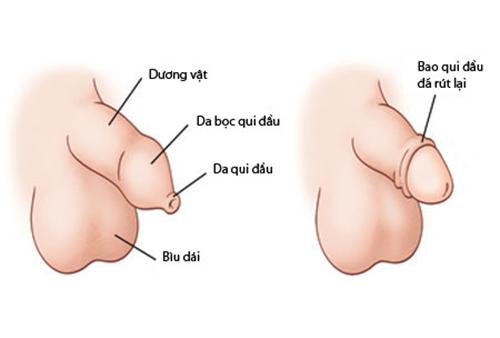 Băn khoăn thường gặp về cơ quan sinh dục của bé
