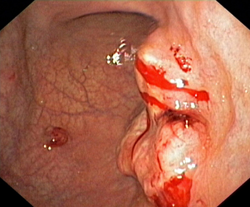 Phẫu thuật u buồng trứng, bác sĩ phát hiện bệnh nhân nữ 22 tuổi bị ung thư dạ dày