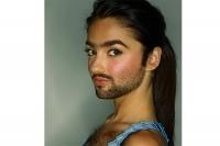Nam hóa và rậm lông ở nữ giới, vì sao?