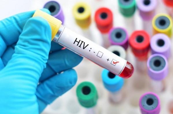 Biểu hiện của HIV theo từng giai đoạn