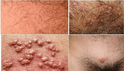 Coi chừng Herpes sinh dục dễ lây truyền