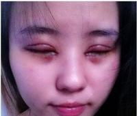 2 lần nhấn mí làm đẹp, cô gái trẻ hoảng sợ vì loét giác mạc, mắt mờ dần