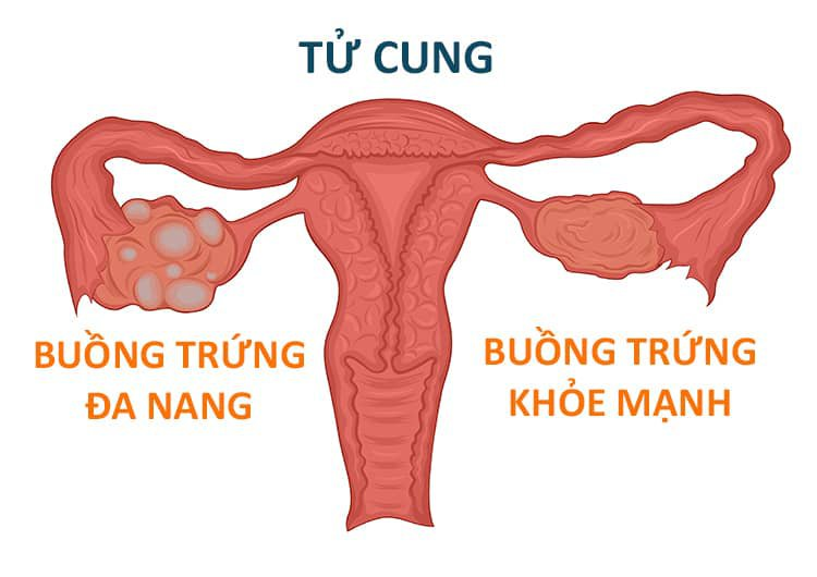 Nguy hại của bệnh đa nang buồng trứng