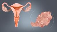 Buồng trứng đa nang và nguy cơ hiếm muộn