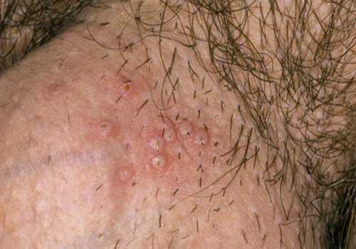 Viêm nang lông ở bộ phận sinh dục