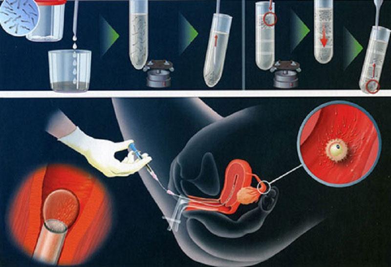 Giới thiệu 1 số phương pháp hỗ trợ sinh sản thường được sử dụng