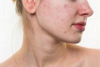 Chăm sóc và chữa trị da bị dị ứng mỹ phẩm