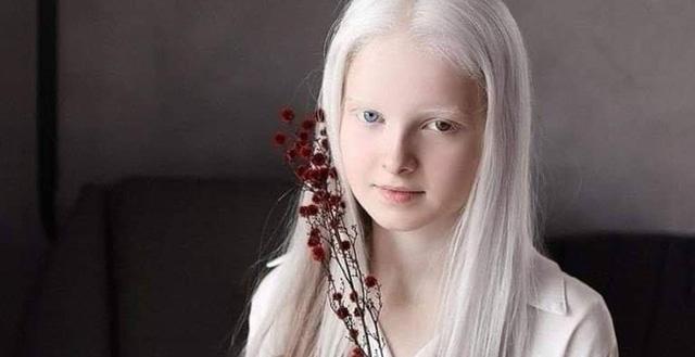 Cô gái Nga bị đột biến gen có đôi mắt hai màu, đẹp như tác phẩm nghệ thuật