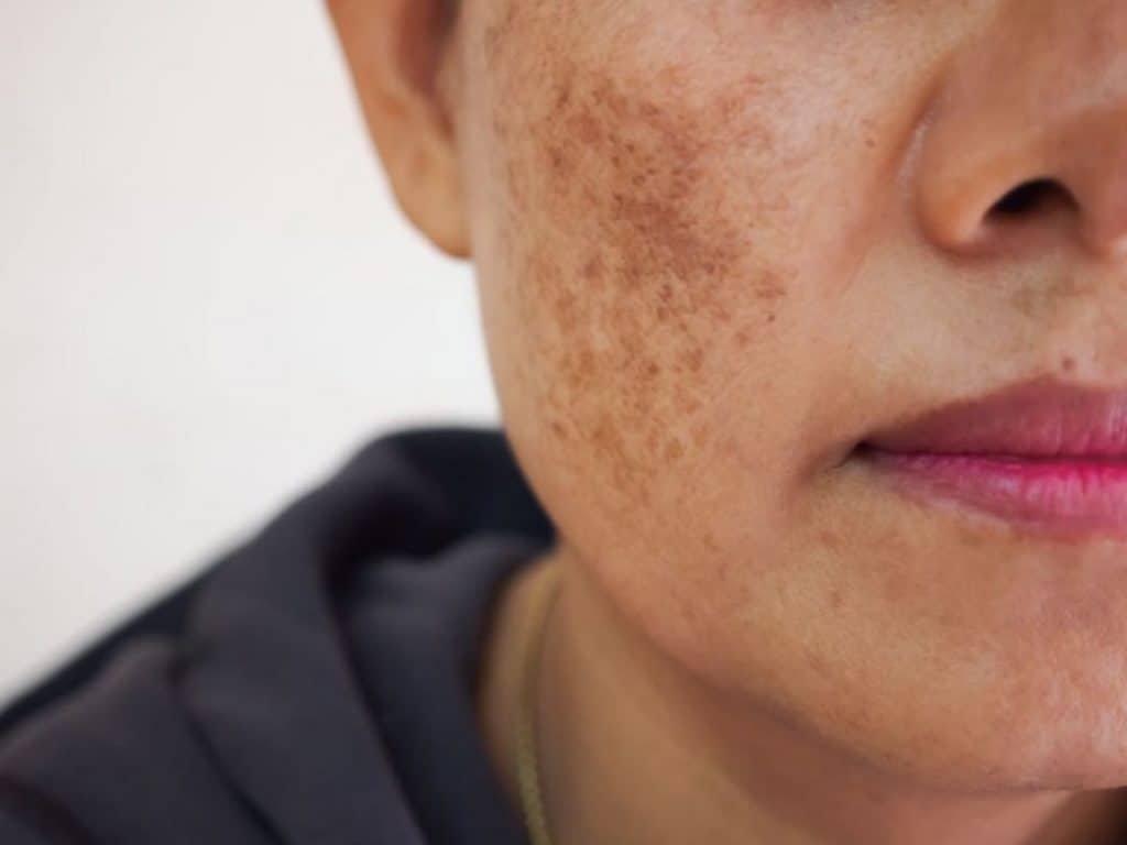 Cách hạn chế chứng tăng sắc tố da