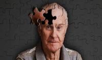 Alzheimer và những dấu hiệu sớm cần lưu ý