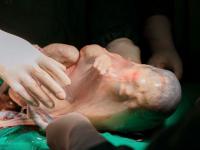 Cặp song sinh chào đời, 1 bé vẫn còn nguyên trong bọc ối